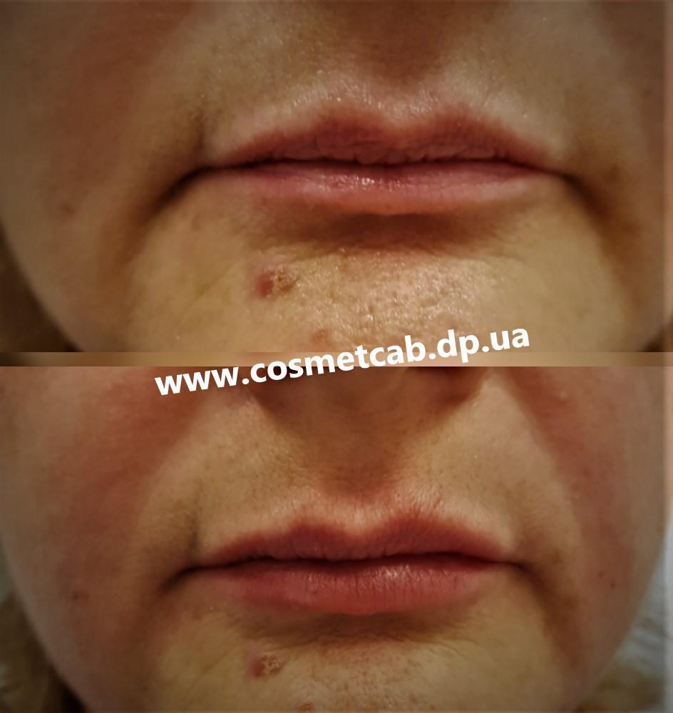 Увеличение губ Днепр